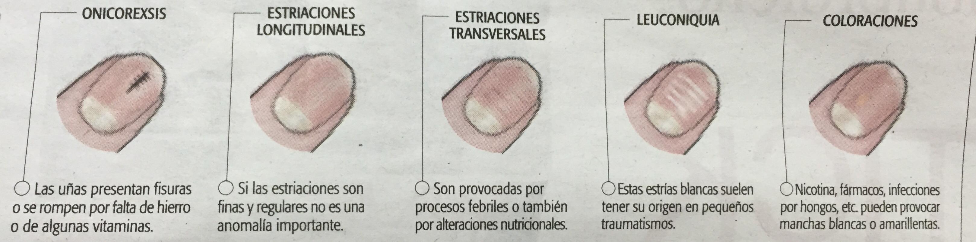 El tratamiento del hongo de la uña por el láser barnaul