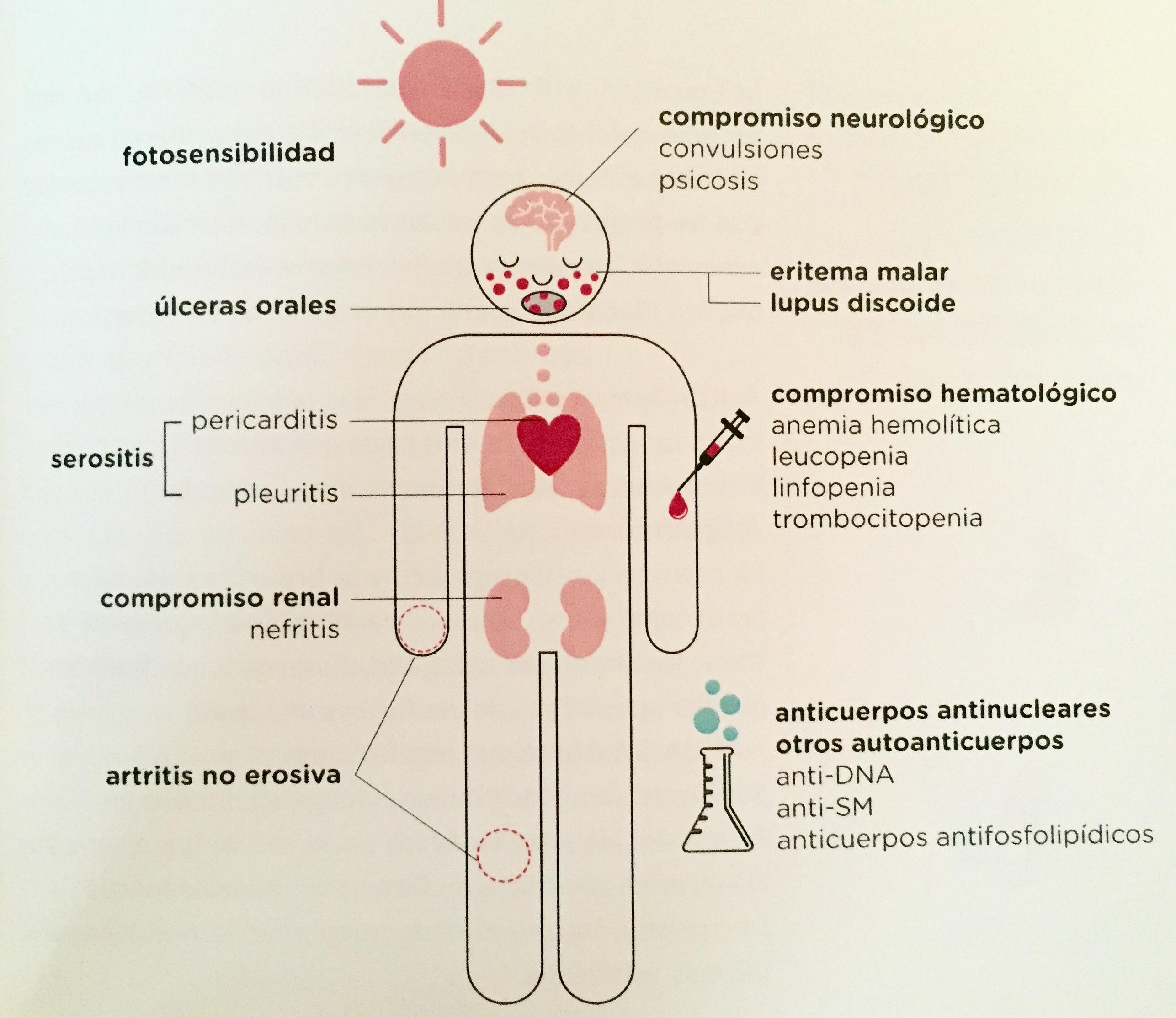 criterios diagnostico lupus